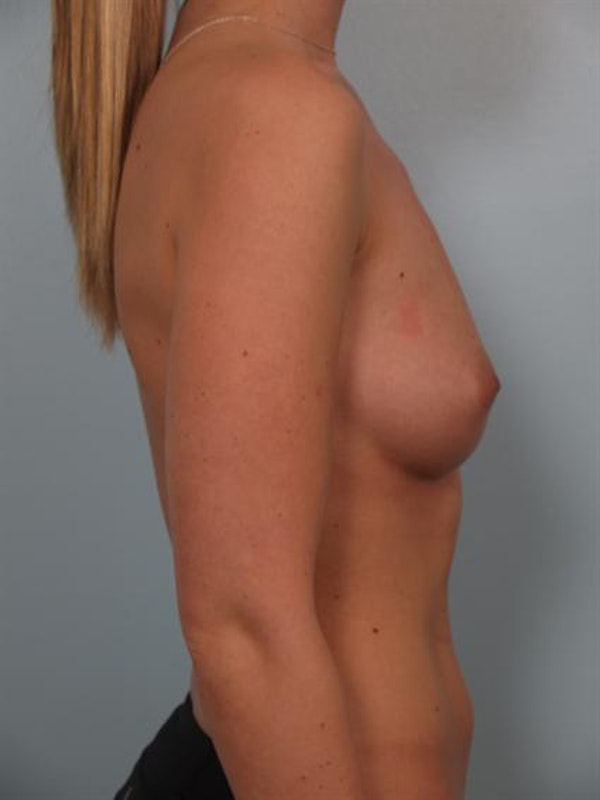 Breast Augmentation Gallery - Patient 1310021 - Image 5