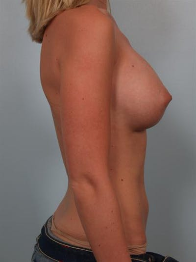 Breast Augmentation Gallery - Patient 1310021 - Image 6
