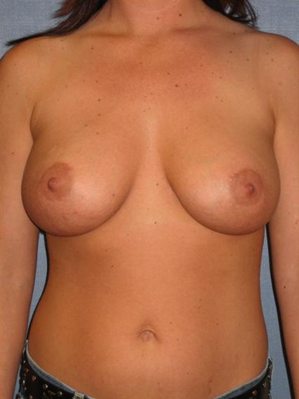 Breast Augmentation Gallery - Patient 1310022 - Image 4
