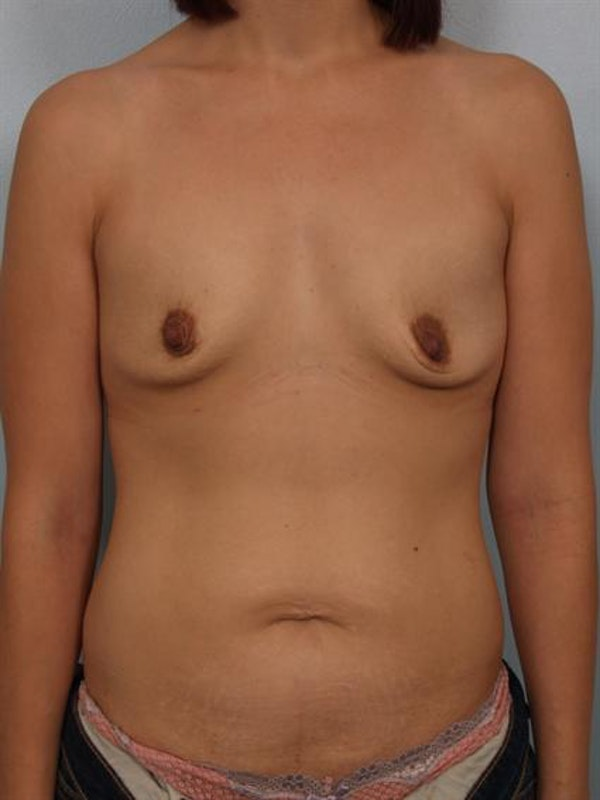 Breast Augmentation Gallery - Patient 1310023 - Image 1
