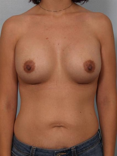 Breast Augmentation Gallery - Patient 1310023 - Image 2