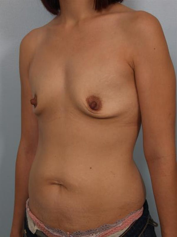 Breast Augmentation Gallery - Patient 1310023 - Image 3