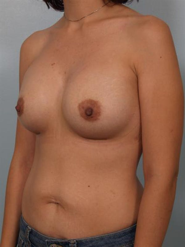 Breast Augmentation Gallery - Patient 1310023 - Image 4