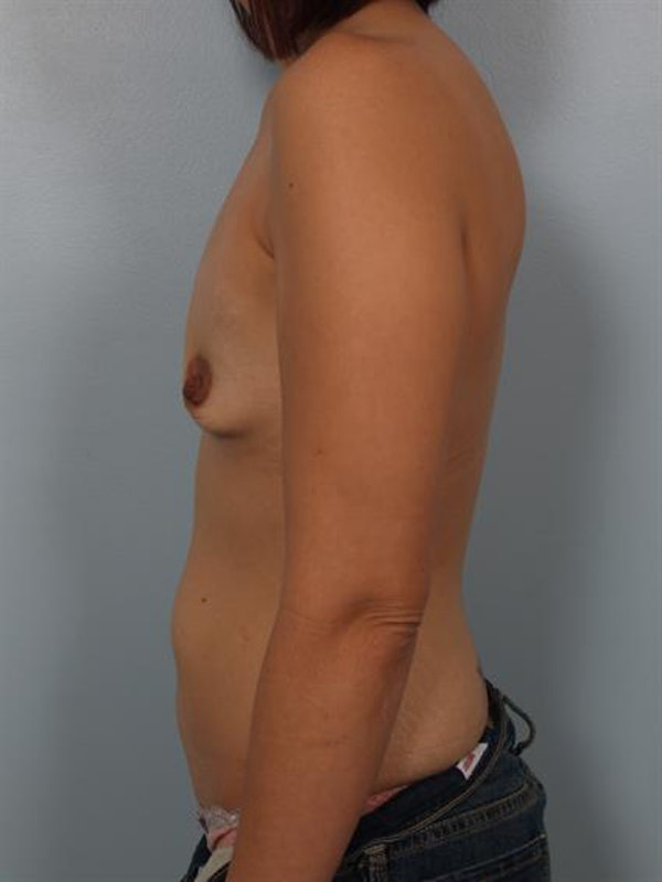 Breast Augmentation Gallery - Patient 1310023 - Image 5
