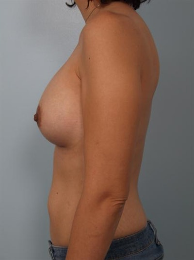 Breast Augmentation Gallery - Patient 1310023 - Image 6