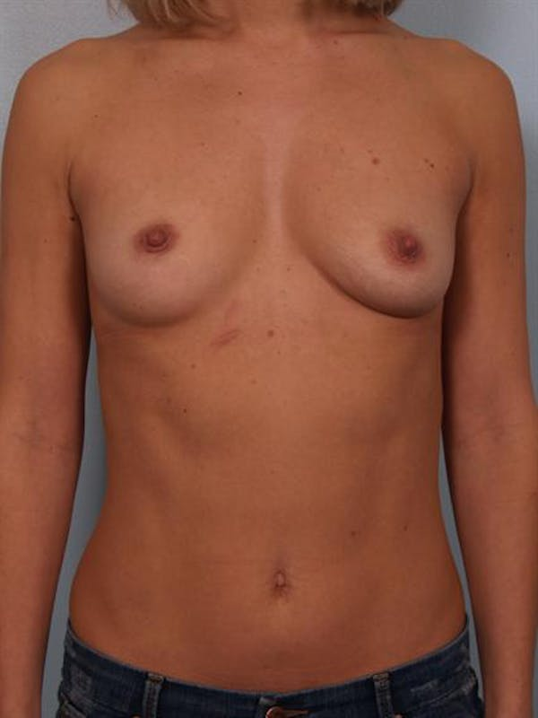 Breast Augmentation Gallery - Patient 1310024 - Image 1