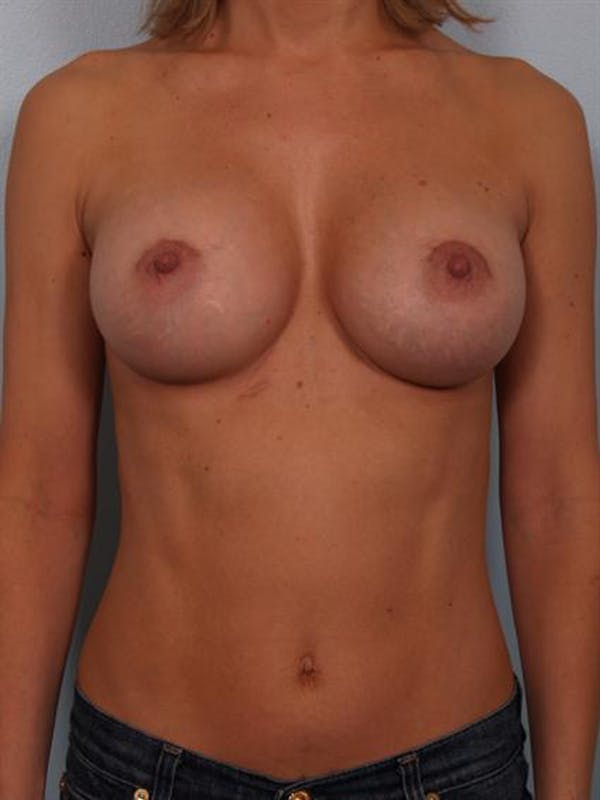 Breast Augmentation Gallery - Patient 1310024 - Image 2