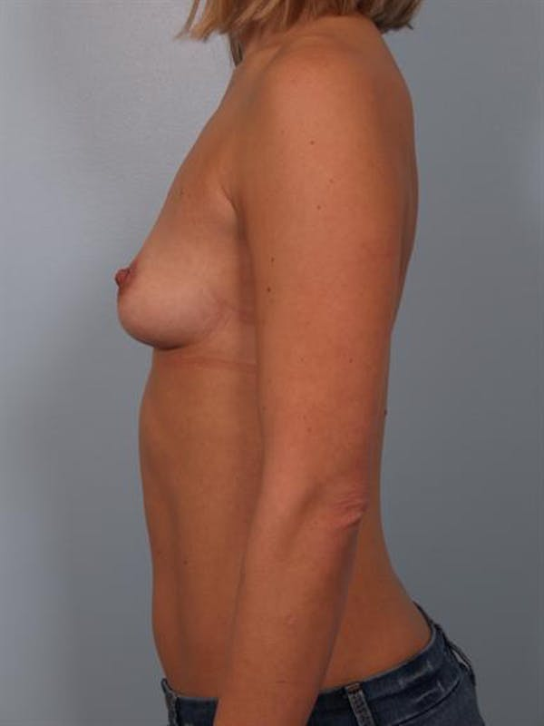 Breast Augmentation Gallery - Patient 1310024 - Image 3