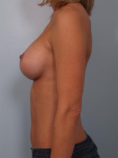 Breast Augmentation Gallery - Patient 1310024 - Image 4