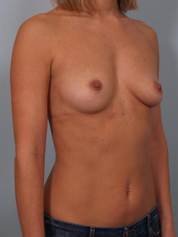 Breast Augmentation Gallery - Patient 1310024 - Image 5