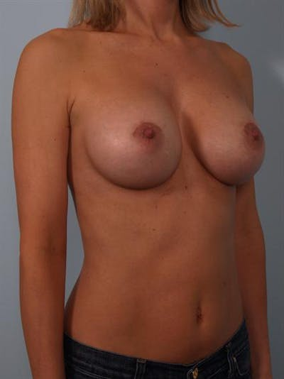 Breast Augmentation Gallery - Patient 1310024 - Image 6