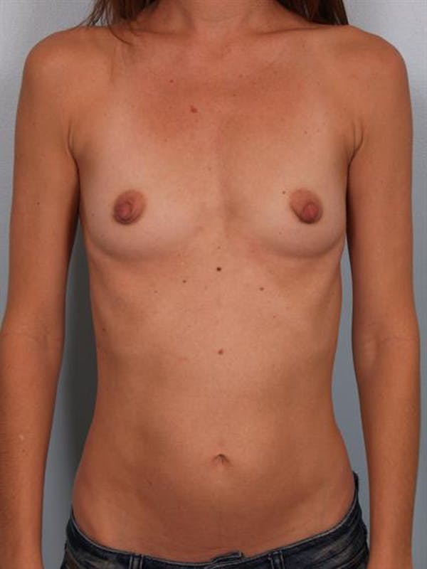 Breast Augmentation Gallery - Patient 1310025 - Image 1