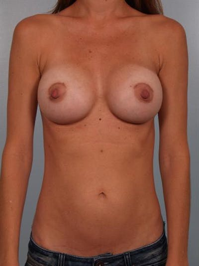 Breast Augmentation Gallery - Patient 1310025 - Image 2