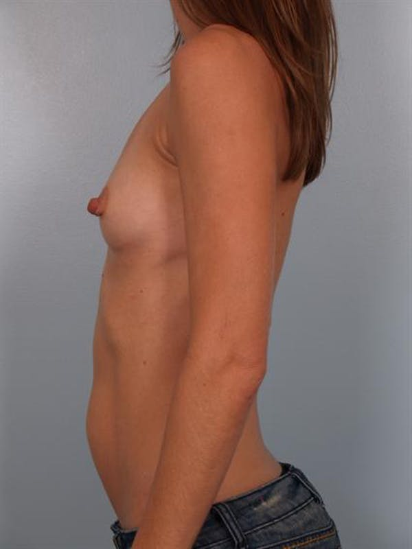 Breast Augmentation Gallery - Patient 1310025 - Image 3