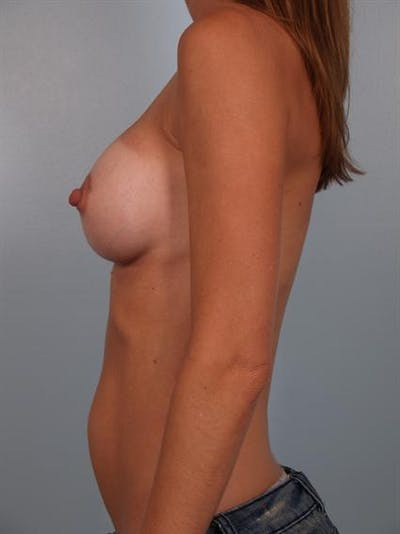 Breast Augmentation Gallery - Patient 1310025 - Image 4