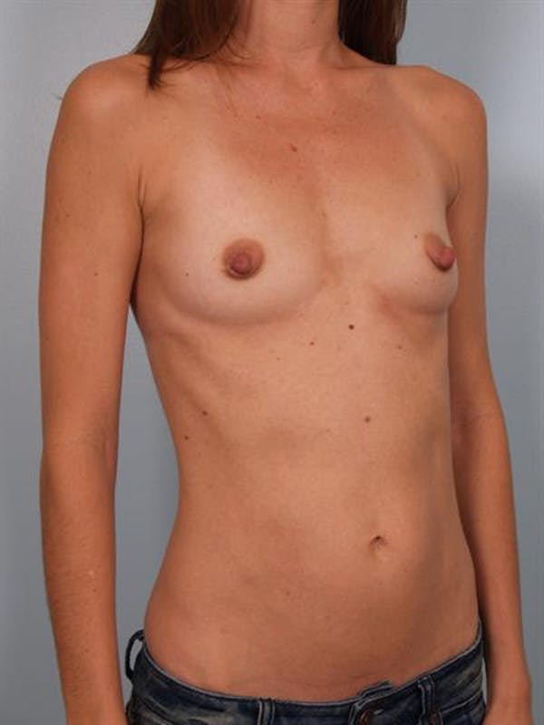 Breast Augmentation Gallery - Patient 1310025 - Image 5