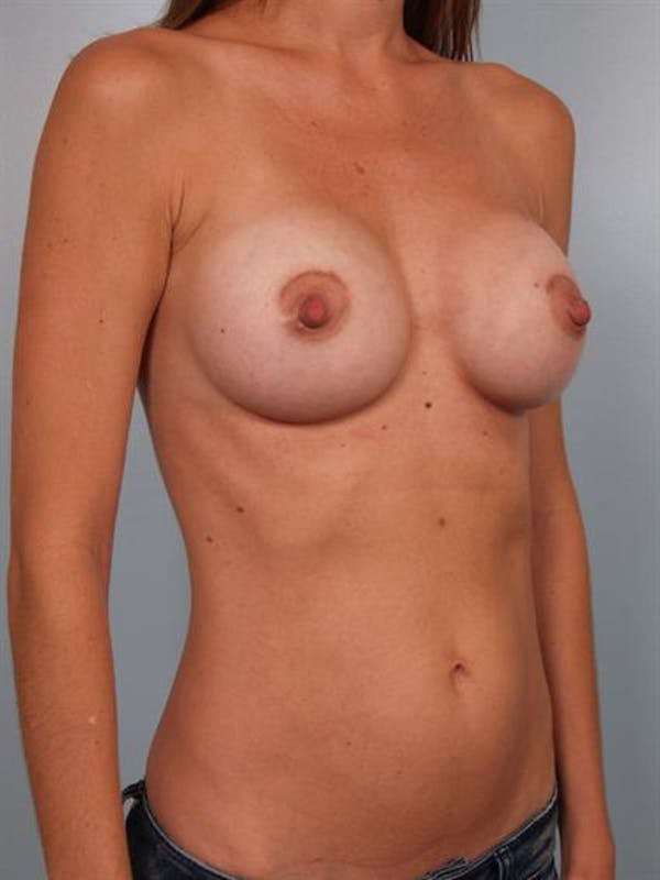 Breast Augmentation Gallery - Patient 1310025 - Image 6