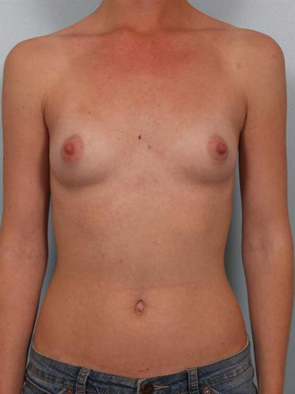 Breast Augmentation Gallery - Patient 1310027 - Image 1