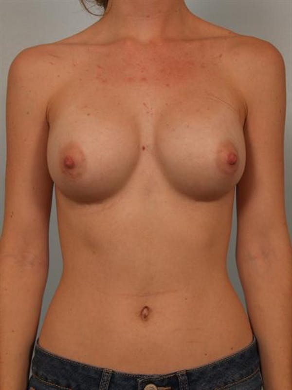 Breast Augmentation Gallery - Patient 1310027 - Image 2