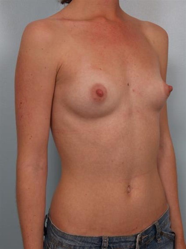 Breast Augmentation Gallery - Patient 1310027 - Image 3
