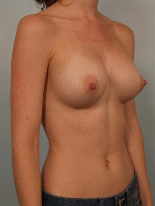 Breast Augmentation Gallery - Patient 1310027 - Image 4