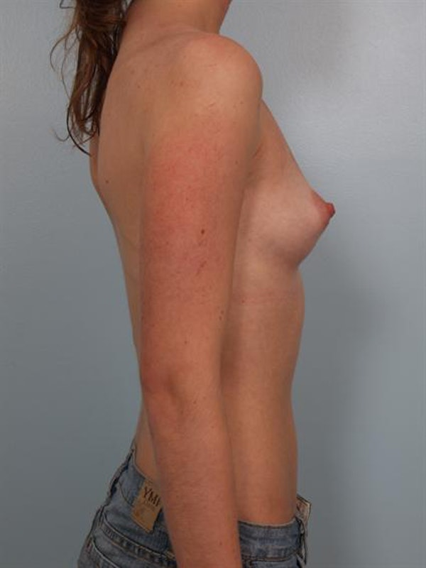 Breast Augmentation Gallery - Patient 1310027 - Image 5