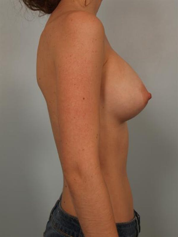 Breast Augmentation Gallery - Patient 1310027 - Image 6