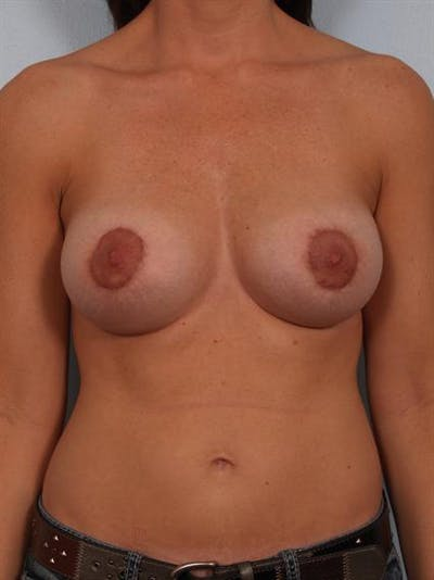 Breast Augmentation Gallery - Patient 1310028 - Image 2