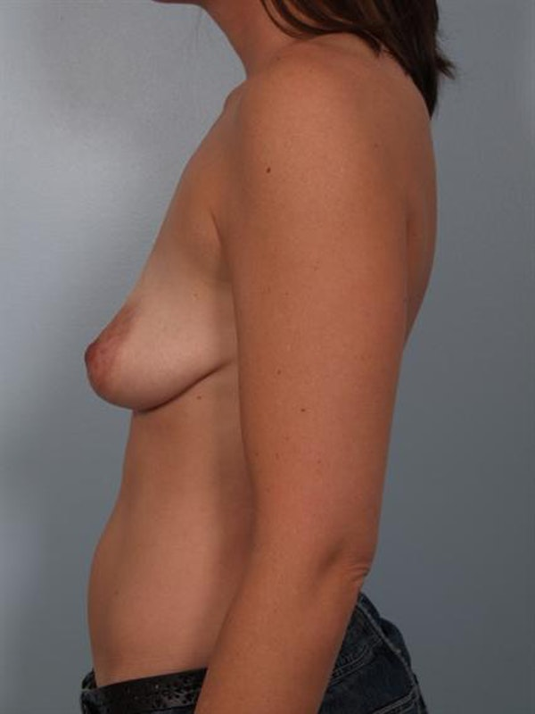 Breast Augmentation Gallery - Patient 1310028 - Image 3