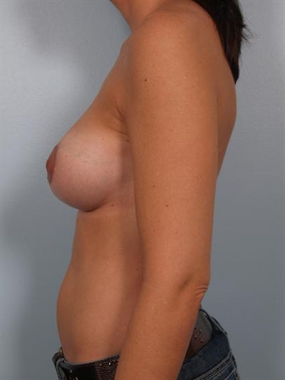 Breast Augmentation Gallery - Patient 1310028 - Image 4