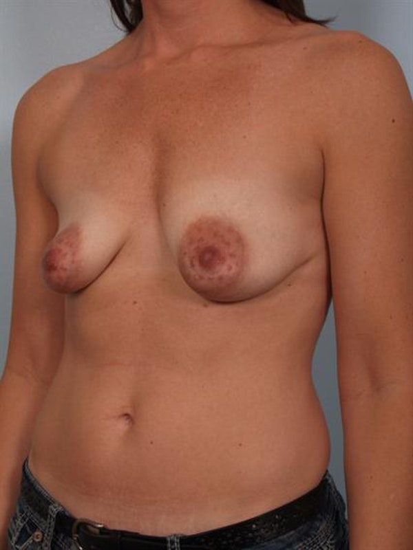 Breast Augmentation Gallery - Patient 1310028 - Image 5