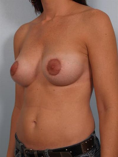 Breast Augmentation Gallery - Patient 1310028 - Image 6
