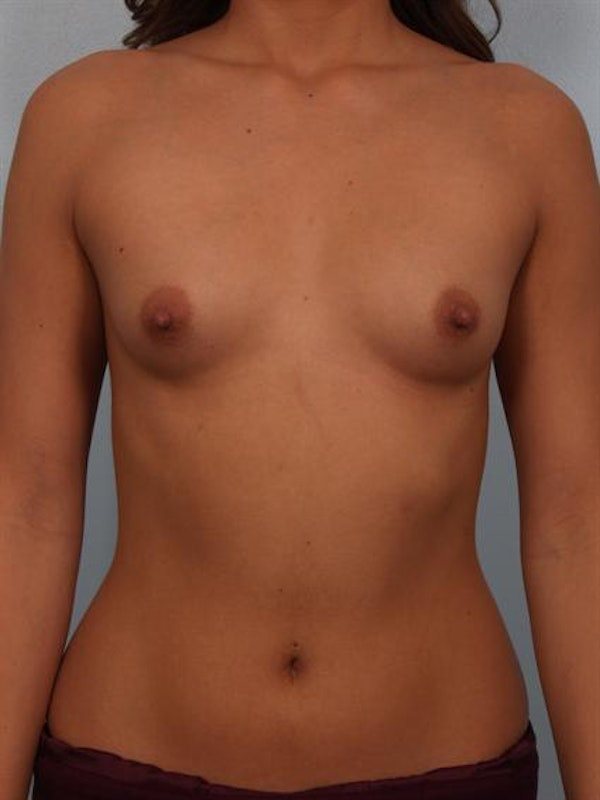 Breast Augmentation Gallery - Patient 1310029 - Image 1