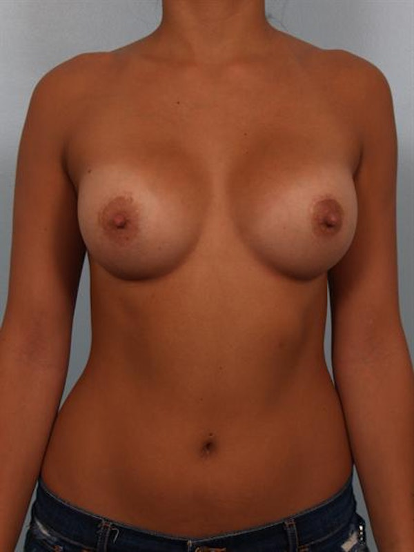 Breast Augmentation Gallery - Patient 1310029 - Image 2