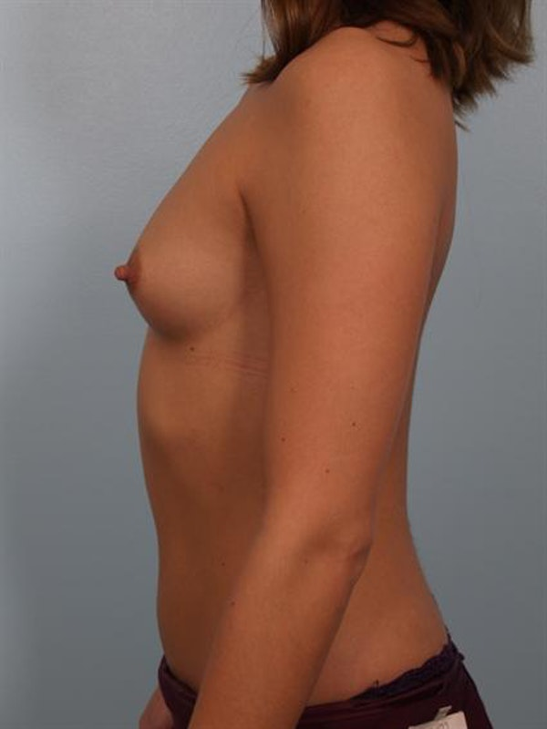 Breast Augmentation Gallery - Patient 1310029 - Image 3