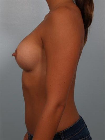 Breast Augmentation Gallery - Patient 1310029 - Image 4