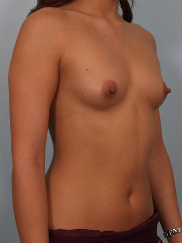 Breast Augmentation Gallery - Patient 1310029 - Image 5