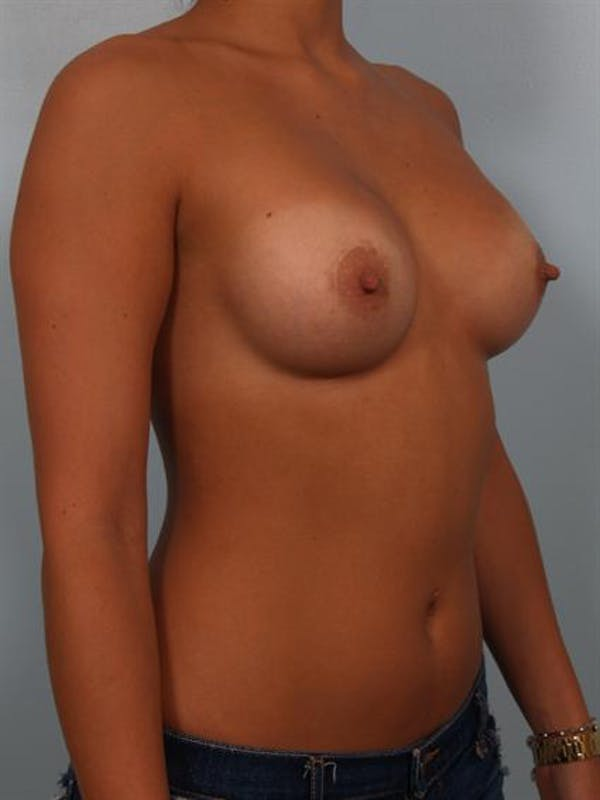 Breast Augmentation Gallery - Patient 1310029 - Image 6