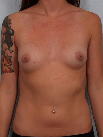Breast Augmentation Gallery - Patient 1310030 - Image 1