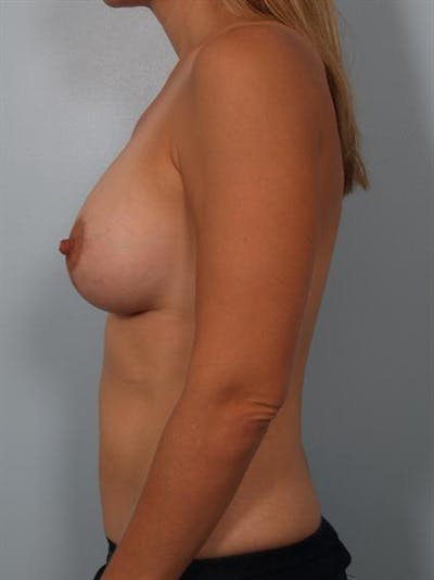 Breast Augmentation Gallery - Patient 1310032 - Image 2