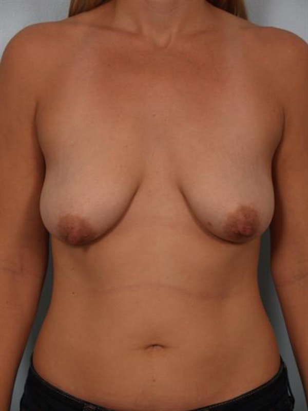 Breast Augmentation Gallery - Patient 1310032 - Image 3