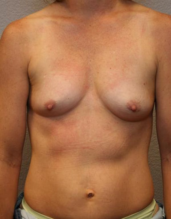 Breast Augmentation Gallery - Patient 1310033 - Image 1
