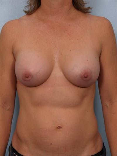 Breast Augmentation Gallery - Patient 1310033 - Image 2