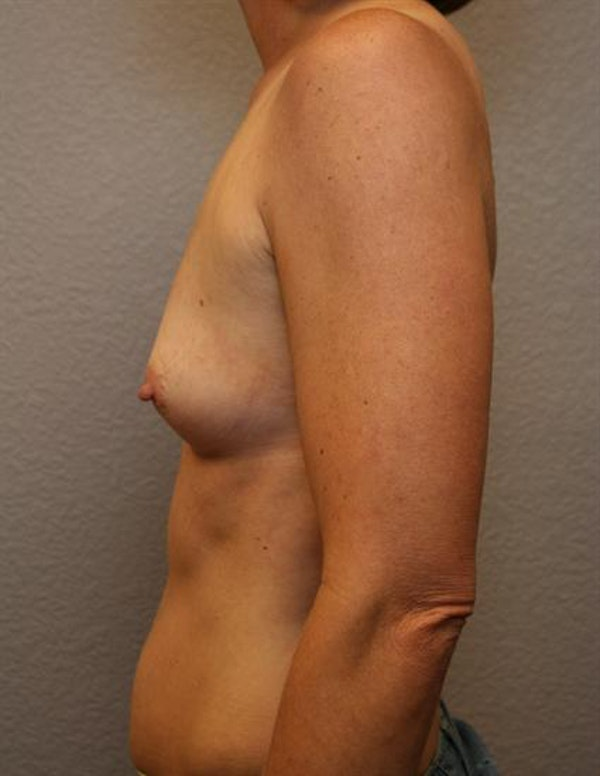 Breast Augmentation Gallery - Patient 1310033 - Image 3