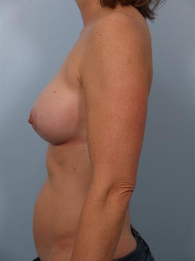 Breast Augmentation Gallery - Patient 1310033 - Image 4