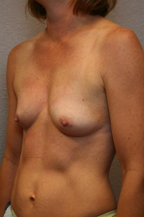 Breast Augmentation Gallery - Patient 1310033 - Image 5