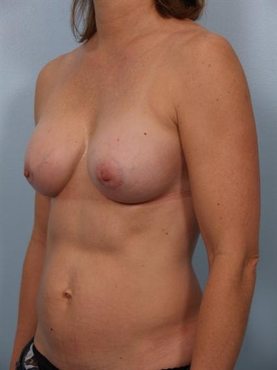 Breast Augmentation Gallery - Patient 1310033 - Image 6