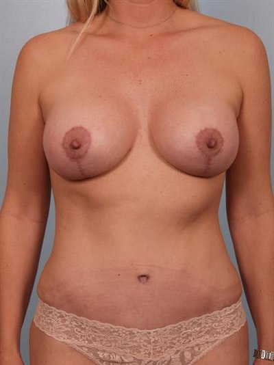 Breast Augmentation Gallery - Patient 1310034 - Image 4