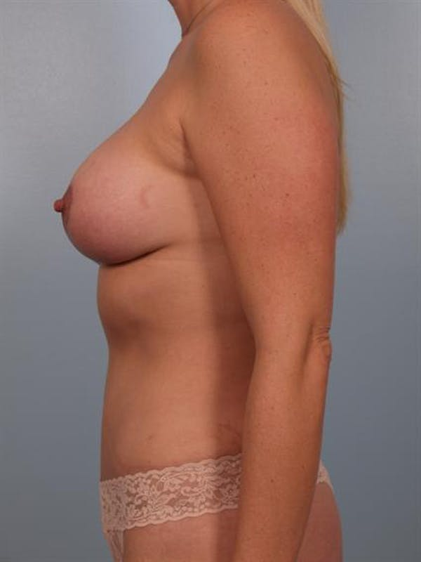 Breast Augmentation Gallery - Patient 1310034 - Image 6