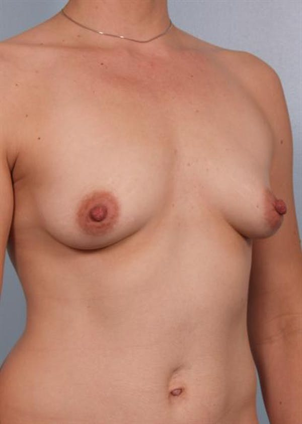 Breast Augmentation Gallery - Patient 1310037 - Image 1